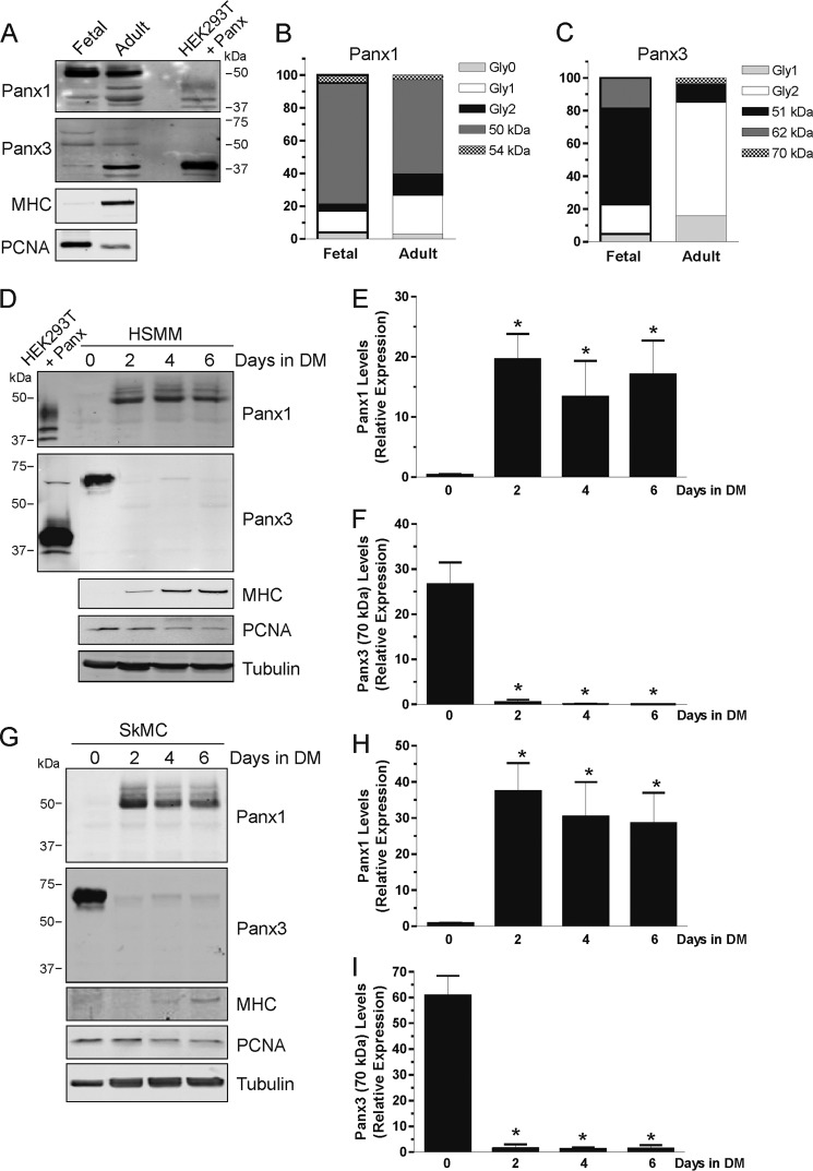 Panx1 and Panx3 levels are modulated during skeletal muscle myogenic differentiation. A , Panx1 and Panx3 were detected in human fetal and adult skeletal muscle tissue lysates, and their various species were quantified ( B and C ). For both Panx1 and Panx3, the higher M r species are more abundant in the fetal skeletal muscle, and the banding pattern switches toward lower M r forms in the adult tissue. Lysates of HEK293T cells expressing either Panx1 or Panx3 were used as positive controls. MHC and PCNA were detected to show the differentiation and proliferation status of the cells within the tissue, respectively. HSMM ( D ) and SkMC ( G ) were induced to differentiate for 6 days. Panx1 was found at very low levels in undifferentiated cells and was drastically induced during differentiation ( E and H ), whereas the ∼70-kDa immunoreactive species of Panx3 was abundant in undifferentiated and proliferative skeletal muscle cells and down-regulated during differentiation ( F and I ). As expected, MHC was increased during differentiation, and PCNA levels were reduced. Lysates of HEK293T cells expressing either Panx1 or Panx3 were used as positive controls. Tubulin was used as a loading control.