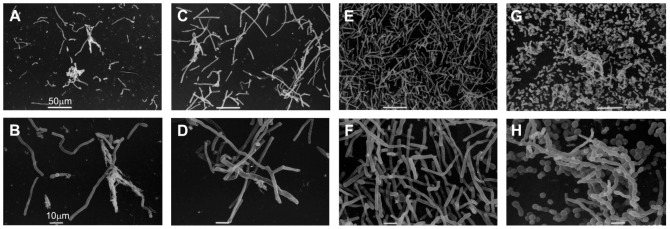 Scanning electron microscopy of 4 Trichosporon spp. strains grown on catheter surfaces. A and B : Low biofilm producer T. asahii 05-001 (CV-A 570 = 0.287); C and D : Medium biofilm producer T. asahii 18-001 (CV-A 570 = 1.557); E and F : High biofilm producer T. asahii 07-001A (CV-A 570 = 3.337); and G and H : High biofilm producer T. asteroides 13-001 (CV-A 570 = 2.755).
