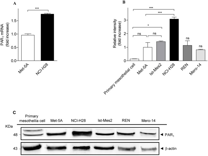 NCI-H28 cells over-express PAR 1 . A, relative expression levels of PAR 1 mRNA in Met-5A and NCI-H28 cells as determined by real time RT-PCR. B, relative expression levels of PAR 1 protein in primary mesothelial cells, Met-5A, NCI-H28, REN, Ist-Mes2, and Mero-14 cell lines as determined by immunoblot analysis followed by densitometric quantitation. Data are expressed as arbitrary unit (fold increase over Ctrl, Met-5A cells) after normalization by β-actin. Data shown are mean ± SEM of three independent experiments. The differences in PAR 1 expression levels between Ctrl (Met-5A or primary mesothelial cells) and MPM cells were significant (*P≤0.05, ***P≤0.001) by one-way ANOVA followed by Bonferroni's multiple comparison test (n = 3). C, a representative immunoblot.