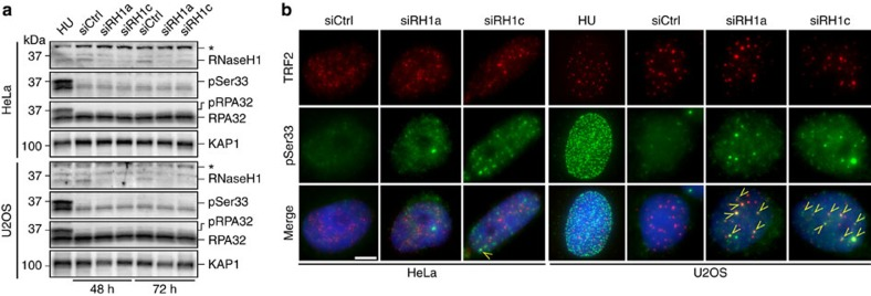 RNaseH1 depletion leads to RPA activation at ALT telomeres. ( a ) HeLa and U2OS cells were transfected with the indicated siRNAs and 48 and 72 h later protein extracts were prepared. Western blot analysis was performed using antibodies against RNaseH1, RPA32 phosphorylated at Serine 33 (pSer33), total RPA32 and KAP1 (loading control). The asterisk indicates a cross-reacting band. Cells treated for 6 h with 5 mM hydroxyurea (HU) were used as controls for pSer33 activation. ( b ) SiRNA transfected cells were subjected to indirect immunofluorescence using antibodies against TRF2 (to visualize telomeres; red) and pSer33 (green). DNA was counterstained with DAPI (blue). Arrows point to examples of pSer33 foci co-localizing with TRF2 (TIFs). Scale bar, 9 μm. Cells treated for 6 h with 5 mM HU were used as controls for pSer33 activation.