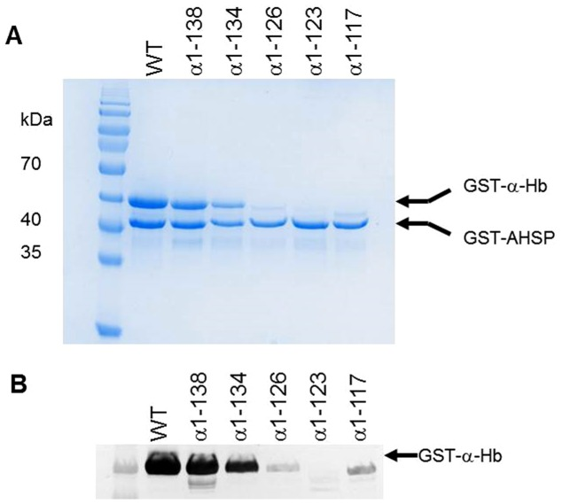 Yield of various truncated α-Hbs after purification. The different soluble fractions obtained after disruption of induced cells was applied on Glutathione Sepharose 4B in PBS (150 mM NaCl, 10 mM Na 2 HPO 4 , pH 7.4). After washing, various truncated GST-AHSP WT /GST-α-Hb complexes were eluted (elution buffer: 50 mM Tris-HCl, 20 mM reduced glutathione pH 8.0) and analyzed by (A) SDS-PAGE (12%) and (B) Western Blotting using anti-α globin antibodies.