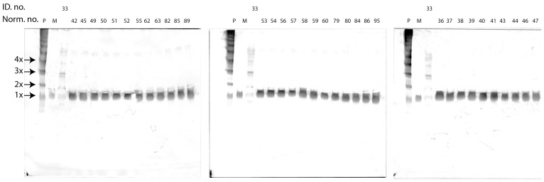 """Native PAGE WB analysis of EDTA plasma samples from 34 healthy individuals, and one polymer positive HAE patient (lab. nr. 33: CPDA plasma). """"Norm. nr."""". depicts the number ascribed to each healthy individual, """"P"""", """"M"""" and """"ID. no."""" depictions as for figure 3 ."""