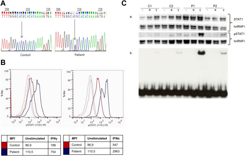 The mutant T385M STAT1 allele is a gain-of-phosphorylation and gain-of-function mutation. A, Direct sequence analysis of exon 14 of STAT1 (forward sequence) in a control subject and the patient with a c.1153C > T resulting in p.T385M. B, Intracellular staining of phosphorylated tyrosine 701 STAT1 (STAT1p) in lymphocytes after stimulation with IFN-γ (2000 IU/mL, left panel ) or IFN-α (10 5 IU/mL, right panel ) for 15 minutes. STAT1 and STATp are shown in a control subject (red) and in the T385M patient (blue) . Unstimulated conditions are represented as dashed lines . Results shown are representative of 2 independent experiments. MFI , Mean fluorescence intensity. C, Evaluation of STAT1, STAT1 phosphorylation, and STAT1p GAS DNA-binding capacity. Fibroblasts derived from wild-type (WT)/WT control subjects (C1 and C2), p.T385M/WT (patient P1), and p.K388E/WT (patient P2) were stimulated with 100 U/mL IFN-α (α) or 100 U/mL IFN-γ (Υ) or left unstimulated (−) for 60 minutes. a , Western blotting was carried out for detection of STAT1 and STAT1p levels in nuclear extracts (5 μg per sample). Heterogeneous nuclear ribonucleoprotein I (hnRNP I) was used as a loading control reference. b , STAT1 GAS DNA-binding capacity was evaluated by using EMSA. One microgram of nuclear extract was preincubated with 20,000 cpm of GAS probe at room temperature before nondenaturing PAGE separating free from STAT-bound probe.