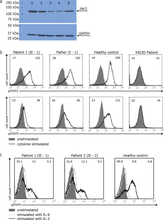 a Analysis of JAK3 protein expression in B-cell lines of a healthy control (1), father of the patients (2), patient 1 (3), patient 2 (4) and a γc-deficient SCID patient (5). Examination of GAPDH protein expression served as a loading control. b Analysis of JAK3 signaling function in B-cell lines of a healthy control, patient 1 (II-1), her father (I-1) and a γc-deficient SCID patient after stimulation with IL-4 and IL-21. Numbers in the top left and right corners of each histogram in panel B indicate the Mean Fluorescence Intensity (MFI) values of unstimulated and cytokine-stimulated cells, respectively. c Analysis of JAK3 signaling function in CD4+ peripheral blood T-cells of a healthy control, patient 1 (II-1) and patient 2 (II-2) after stimulation with IL-2. Histogram overlays represent intracellular levels of phosphorylated STAT5 in CD4+ T-cells without stimulation or after stimulation with IL-2 or IL-6. Numbers in the left top corner and middle part of each histogram indicate percentages of cells with a positive staining for pSTAT5 following stimulation with IL-2 or IL-6, respectively, while numbers in right corner constitute percentages of pSTAT5-positive unstimulated control cells
