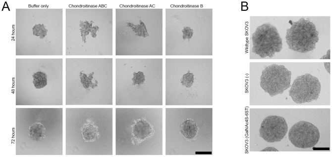 Spheroid formation by SKOV3 cells depends on chondroitin sulfate. A) Spheroid formation (tumour cell aggregation) was inhibited by enzymatic digestion using either of chondroitinase-ABC or –AC but not by chondroitinase B. Bar: 200 µm B) Spheroids formed by wild type SKOV3 cells and cells transfected with GalNAc4S-6ST and empty vector. Note the smooth and roundish appearance of GalNAc4S-6ST transfected cells. Bar: 100 µm.