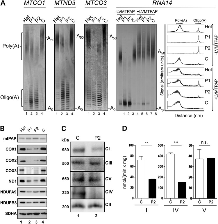 The MTPAP 1432A > G mutation causes defective mt-mRNA polyadenylation and a respiratory chain deficiency. ( A ) RNA was isolated from patient (P1 and P2) and control (Het, unaffected heterozygote; C , unrelated control) fibroblasts before (lanes 1–4) or after (lanes 5–8) transduction with a wild-type MTPAP transgene (±LVMTPAP). The length of the mRNA poly(A) tail was assessed by MPAT in the four transcripts indicated. Representative gels depict fluorescently-labelled products separated through a 10% denaturing polyacrylamide gel and visualized by laser scanning. Zero extension (A 0 ) is the position of migration predicted post-3′ processing of the transcript prior to any addition. A 50 indicates the position of a poly(A) of 50 nt. Densitometric profiles of the signal from the RNA14 MPAT are presented in the far right panel. ( B ) Cell lysates (40 µg) isolated from patient and control fibroblasts were separated via 12% denaturing SDS–PAGE, and immunoblotting was performed. The images are representative of data using antibodies targeting mtPAP and OXPHOS subunits (listed in materials and methods). Detection was by ECL+ and Biorad ChemiDoc MP imaging system. ( C ) Mitochondria (40 µg) isolated from patient and control fibroblasts were analysed by Blue Native PAGE (4.5–16%). Each of the OXPHOS complexes was decorated using primary antibodies targeted to NDUFA9 (CI), Core 2 subunit (CIII), α-subunit (CV), the holoenzyme (CIV) and SDHA (CII). Sizes of the detected complexes are indicated to the left of panels, and the complex identities are shown on the right. ( D ) The activities of OXPHOS complexes I, IV and V were determined in mitochondria isolated from patient (black) and control (white) fibroblasts. Activities are expressed as nmol rotenone-sensitive NADH oxidized/min/mg mt-protein (CI), nmol reduced cytochrome c oxidized/min/mg mt-protein (CIV) and NADH oxidized/min/mg mt-protein (CV). N = 4, errors bars indicate ±SD. Student t -test (ns * P