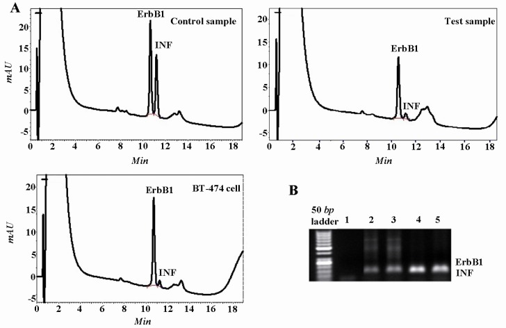 HPLC separation and electropherogram of the <t>PCR</t> products from the ErbB1 oncogene and the interferon gamma (INFγ) gene for the detection of the ErbB1 gene amplification. A) Chromatograms showing the results for normal <t>DNA</t> (control), DNA from breast tumors (test) and BT-474 breast carcinoma cell line (high copy control); B) Lanes 1, 2-3, 4 and 5 are respectively blank, controls, high copy control and DNA from primary breast carcinoma. The PCR products of INFγ and ErbB1 genes are very close together