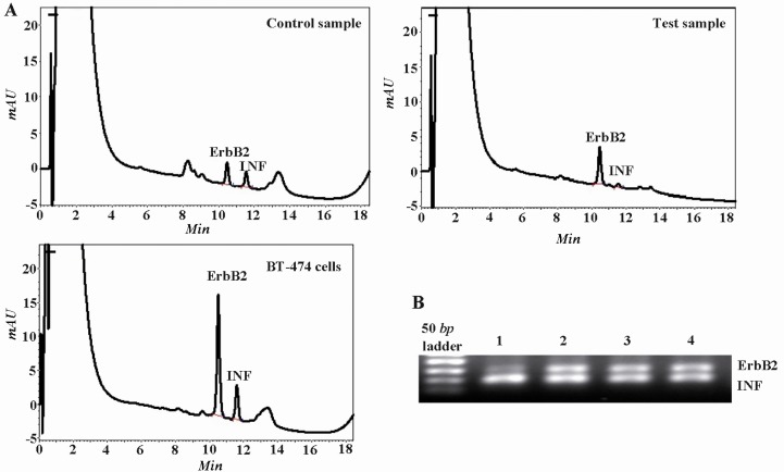 HPLC separation and electropherogram of The PCR products from the ErbB2 oncogene and the interferon gamma gene (INFγ) for the detection of the ErbB2 gene amplification. A) Chromatograms showing the results for normal DNA (control), DNA from cancerous breast (test) and BT-474 breast carcinoma cell line (high copy control); B) Lane 1 is high copy control, lanes 2 and 3 are DNA from primary breast carcinoma and lane 4 is normal breast tissue