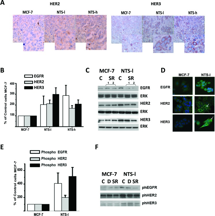 NTS autocrine and paracrine regulation enhanced <t>EGFR,</t> <t>HER2,</t> and HER3 basal expression and activation in human breast cancer cell lines (A) HER2 and HER3 immunohistochemistry performed on paraffin embedded tumors from mice xenograph with MCF-7, NTS-l or NTS-h. 200X magnification and computer enlargement of specific areas. (B) Breast cancer cells MCF-7, NTS-l and NTS-h, with the histograms representing intensity-based quantification of Western blot bands of basal total protein, EGFR, HER2, and HER3, using Morpho Expert software (Explora Nova, France). Values are expressed as the percentage of the control MCF-7 cells and are the mean ± SEM of 5 to 7 independent experiments. (C) Representative western blot analyses of EGFR, HER2, HER3 and ERK 1/2 total protein from MCF-7 and NTS-l cells treated with 5x10 −6 M SR 48692. (D) EGFR, HER2, and HER3 immunolabeling in MCF-7 and NTS-l cells treated after 48h of seeding. (E) Breast cancer cells MCF-7 and NTS-l, with the histograms representing intensity-based quantification of Western blot bands of phosphorylated protein, EGFR, HER2, and HER3. Values are expressed as the percentage of the control MCF-7 cells and are the mean ± SEM of 5 to 7 independent experiments. (F) Representative western blot analyses of Phospho EGFR, phosphoHER2, and Phospho HER3 protein from MCF-7 and NTS-l cells treated with DMSO or 5x10 −6 M SR 48692 for 48h.