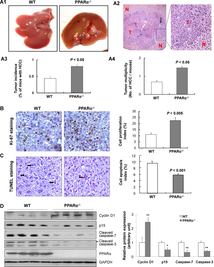 PPARα loss increases susceptibility to DEN-induced hepatocarcinogenesis (A1) Gross morphology of typical liver tumors from DEN-treated wild-type (WT) and PPARα knock out (PPARα -/- ) male mice at 6 months. (A2) Representative microscopic features of HCC in H E-stained liver sections of mice. T, tumor; N, adjacent non-tumor tissue. (A3) HCC incidence, and (A4) Number of HCCs per mouse in PPARα -/- and WT mice at 6 months were counted and expressed as mean ± SD, 7-10 mice/group. (B) Cell proliferation in HCCs of PPARα -/- and WT mice by Ki-67 immuno-staining (left panel). Quantitative assessment of cell proliferative index by Ki-67 positive cells (right panel). Data expressed as mean ± SD, 7-10 mice/group. (C) Apoptosis in HCCs of PPARα -/- and WT mice by TUNEL staining (left panel). Quantitative assessment of apoptosis determined by TUNEL positive cells (right panel). Data are means ± SD, 7-10 mice/group. (D) Protein expression of cyclin D1, p15, cleaved caspase-7, cleaved caspase-3 and PPARα in HCCs from PPARα -/- and WT mice determined by western blot. GAPDH was used as a loading control.