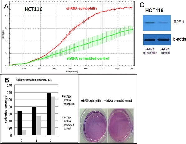 Cellular growth, anchorage-independent growth and molecular alterations (A) In the xCELLigence system, increase in the cellular growth is observed in HCT116 shRNA spinophilin (red, upper line) compared to HCT116 shRNA scrambled control (green, lower line) cells (B) Colony numbers in soft agar plates are significantly increased in the spinophilin-silenced HCT116 cells. Numbers below the bars are representing three independent experiments. (C) In the spinophilin-silenced cells increased amount of E2F-1 was detected in Western blot analysis.