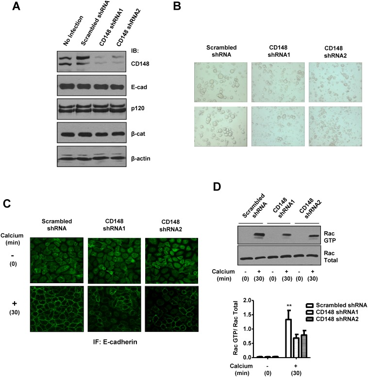 CD148 knockdown reduces cell-cell adhesion and E-cadherin contacts accompanied by a decrease in Rac1 activity in A431 cells. A) A431 cells was infected with a lentivirus encoding CD148-targeting or scrambled shRNA. Cells were harvested at 72 h after infection and the expression of CD148, E-cadherin, p120, and β- catenin was assessed by immunoblot analysis. Equal loading was confirmed by reblotting the membrane for β-actin. The targeting shRNA reduces CD148 expression (∼65%) without altering the E-cadherin, p120, and β-catenin expression. B) CD148 knock-down cells and the control cells treated with scrambled shRNA were subjected to a handing drop assay. Data are representative of five independent experiments. CD148 knockdown reduces cell aggregation in A431 cells. C and D) CD148 knock-down and control cells were subjected to a calcium switch assay and were immunostained for E-cadherin (panel C). Rac1 activity in these cells was also assessed (panel D). Representative results of four independent experiments are shown. The data show means ± SEM of quadruplicate determinations. **P