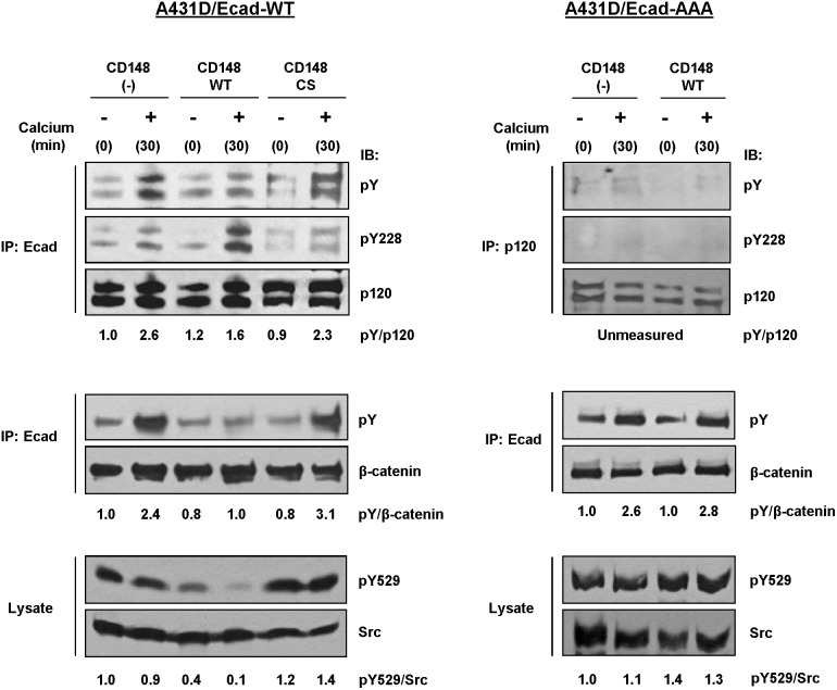 CD148 regulates the tyrosine phosphorylation of p120, β-catenin, and Src upon E-cadherin engagement. Effects of CD148 in the cadherin adhesion-associated tyrosine phosphorylation of p120, β-catenin, and Src were assessed by a calcium-switch assay and immunoblot analysis using A431D/E-caherin WT (left panels) and A431D/E-cadherin 764AAA (right panels) cells. For p120 and β-catenin, tyrosine phosphorylation of p120 and β-catenin that were co-immunoprecipitated with E-cadherin was assessed by immunoblotting. In A431D/E-cadherin 764 AAA cells, p120 was immunoprecipitated. The membranes were reprobed with p120, β-catenin and Src antibodies and a ratio of phosphorylated to total protein was quantified by densitometry. Data are representative of five independent experiments. CD148 WT, but not CS, reduces the tyrosine phosphorylation of p120, β-catenin, and Src (Y529) upon E-cadherin engagement in A431D/E-cadherin WT cells, while it increases the phosphorylation of Y228 (a Src site) in p120. These effects are not observed in A431D/E-cadherin 764 AAA cells.