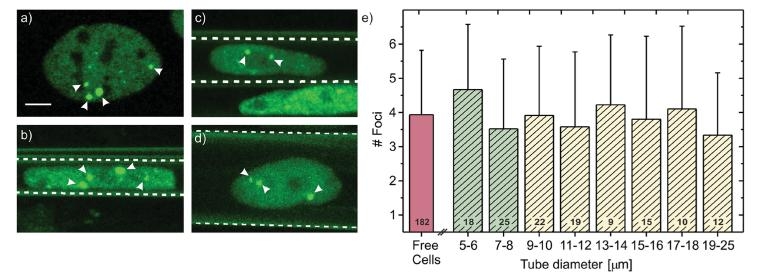 Number of GFP-53BP1 foci in dependence on the diameter of the tubular confinement. a–d) Fluorescence images of GFP-labeled 53BP1 foci in U2OS cell nuclei. The cells are either grown on a) a 2D flat substrate (reference cell) or inside microtubes of b) 6 μm, c) 8 μm, and d) 18 μm diameter. White dashed lines indicate the positions of the <t>microtube</t> walls. Arrowheads point at 53BP1 foci, the scale bar equals 5 μm. e) Quantification of the amount of endogenously present foci of reference (red column) and confined cells (green, yellow columns: tube diameters smaller or larger than the critical threshold value of 8 μm (see Figure 1 ), respectively). Shown error bars are based on the standard deviation of the respective values, the number of evaluated cells is given at the base of each column.