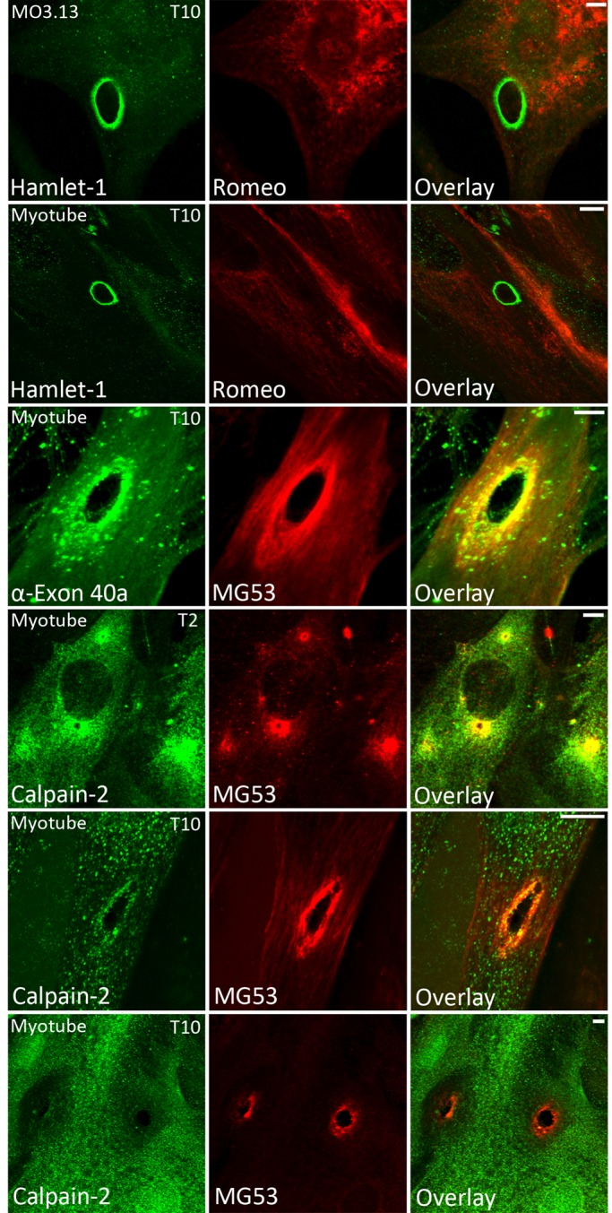 Dysferlin exon 40a and calpain recruit to sites of membrane injury. Cultured MO3.13 secondary oligodendrocytes (row 1) and primary human myotubes (row 2) were shot with 4-μm silica beads using a Bio-Rad Helios Gene Gun, fixed at 10 s postinjury in cold 3% paraformaldehyde, and then permeabilized and immunolabeled (see Materials and Methods ). Romeo was applied for 2 h before Hamlet-1 to bias the detection of the N-terminal dysferlin epitope. Dysferlin was detectable only at sites of membrane injury with Hamlet-1 (rows 1 and 2). Staining with an antibody raised to dysferlin exon 40a revealed exon 40a–containing dysferlin recruits to sites of injury within 10 s (row 3). Calpain-2 was detectable at sites of membrane injury at 2 s (T2, row 4) and 10 s postdamage (T10, row 5). Large-injury sites often showed a void of negative labeling for calpain-2 (T10, row 6), suggesting that calpain might be extracted or escape from large injuries. Scale bar, 5 μm.