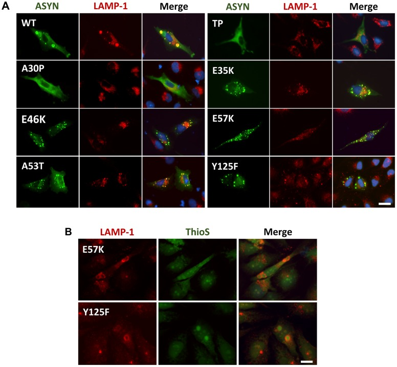 ASYN partially co-localizes with endosomes/lysosomes. A. Immunocytochemistry analysis of H4 cells expressing selected ASYN mutants. Partial co-localization of ASYN and LAMP1 suggests interplay between lysosomal degradation and ASYN inclusion formation. B. E57K and Y125F inclusions co-localize with lysosomal marker LAMP-1. We detected the presence of endosomes/lysosomes surrounding the aggregates in E57K and Y125F. This indicates that, maybe this could be the preferential via for degradation for these mutations. Scale bar: 10 µm.