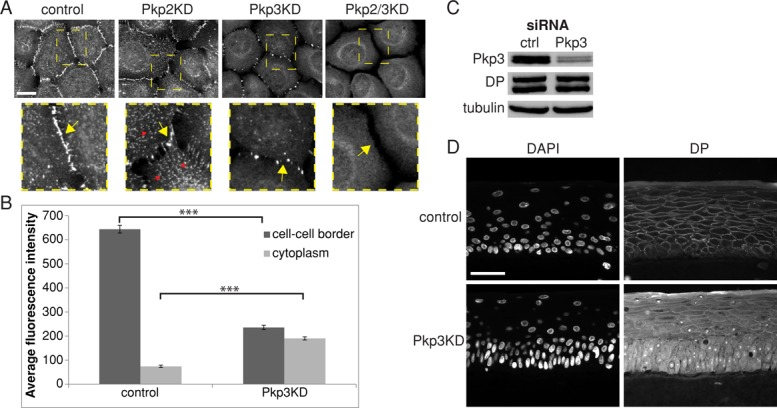 Pkp3 is required for efficient assembly of DP into desmosomes. (A) Immunofluorescence staining for DP representing the distinct patterns of its disruption in Pkp2, Pkp3, and Pkp2-3 double-KD SCC9 cells. Scale bar, 20 μm. Yellow dashed rectangles in top images delineate areas enlarged at the bottom. Yellow arrows point to the sites of cell–cell contacts; red arrows point to DP-containing nonvesicular desmosome precursors in the cytoplasm. Note the absence of cytoplasmic particles in Pkp3 KD and both particles and cell–cell border DP in double-KD cells. (B) Average fluorescence DP pixel intensity at the cell–cell borders and inside the cytoplasm, measured for ≥100 individual cells, showed decreased DP at cell–cell borders in Pkp3 KD cells and a corresponding increase in the cytoplasm. Error bars represent ± SEM. *** p
