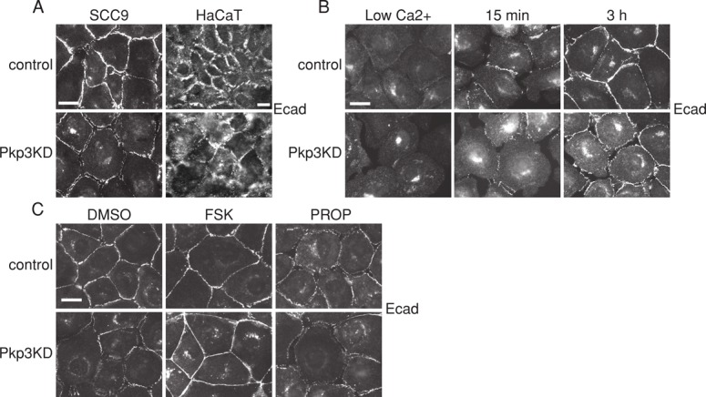Pkp3 deficiency causes defects in cAMP-dependent E-cad maturation. (A) Immunofluorescence staining of E-cad in SCC9 (left) and HaCaT (right) cells shows aberrant cell–cell junction localization in steady-state high-calcium conditions in Pkp3KD cells compared with the control. (B) Immunofluorescence staining showing a defect in maturation of E-cad upon calcium switch at the sites of cell–cell contact in the Pkp3 KD SCC9 cells compared with control. (C) Immunofluorescence staining showing the recovery of E-cad at the borders of Pkp3 KD cells treated with forskolin. Conversely, control cells treated with propranolol mimic the immature appearance of E-cad junctions in a manner similar to the Pkp3 KD cells. Scale bars, 20 μm.