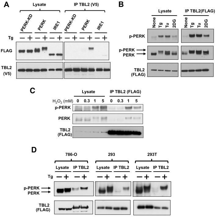 Preferential binding of TBL2 to phospho-PERK. (A) 293T cells were transiently co-transfected with pTBL2 (V5-tag) and either pFLAG-PERK, pFLAG-PERK(K621A) or pFLAG-IRE1 and then were treated with 300 nM thapsigargin (Tg) for 2 h. The cell lysates were immunoprecipitated with anti-V5 antibody and immunoblotted with anti-FLAG or anti-V5 antibody. (B) 293T cells were transiently transfected with pFLAG-TBL2 and then were treated with 300 nM thapsigargin (Tg), 4 µg/ml tunicamycin (Tu) or 10 mM 2-deoxyglucose (2DG) for 2 h. Endogenous PERK protein was detected with anti-PERK or anti–phospho-PERK antibody. (C) 293T cells were transiently transfected with pFLAG-TBL2 and then were treated with the indicated doses of hydrogen peroxide (H 2 O 2 ) for 4 hour. After immunoprecipitation with anti-FLAG antibody-conjugated beads, each protein was immunoblotted with the indicated antibody. (D) 786-O, 293 and 293T cells were transiently transfected with pFLAG-TBL2 and then were treated with 300 nM thapsigargin (Tg) for 1 hour. After immunoprecipitation with anti-FLAG antibody-conjugated beads, each protein was immunoblotted with the indicated antibody.