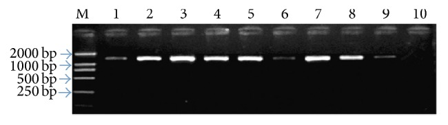 <t>UP-PCR</t> results of some patients. We have detected all the patients and finally we chose some positive bacteria and carried out the electrophoresis, so every line had PCR products. The deeper the stripe, the more the bacteria. Lines 1–9 represented PCR product of the 16S rRNA gene of Staphylococcus aureus , Staphylococcus epidermidis , Pseudomonas aeruginosa , Escherichia coli , Streptococcus viridans , Staphylococcus saprophyticus, Corynebacterium parvum , Klebsiella pneumoniae , and Enterobacter cloacae ; M for DL2000 <t>DNA</t> Marker; ten for negative control.