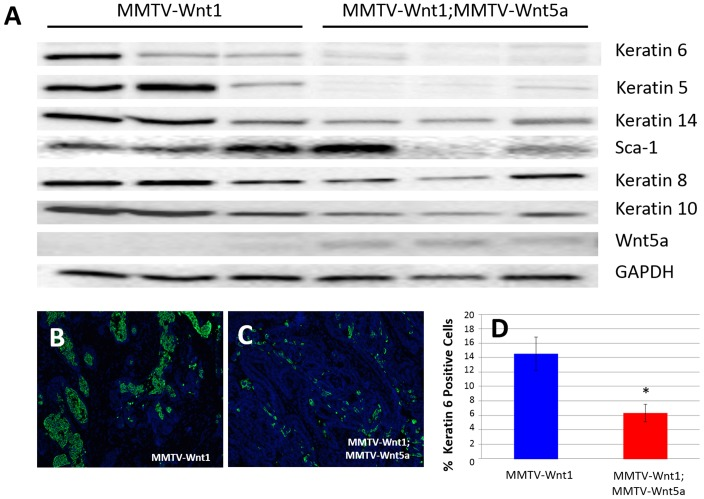 Wnt5a expressing tumors demonstrate a decrease in markers of the basal tumor subtype. (A) Western blot using protein lysates isolated from the epithelium of MMTV-Wnt1 and MMTV-1;MMTV-Wnt5a mammary tumors. The expression of molecular markers of basal and luminal tumor subtypes were compared. Keratin 6 and Keratin 5 were strongly down-regulated in Wnt5a expressing tumors. Glyceraldehyde 3-phosphate dehydrogenase (GAPDH) was used as a loading control. (B–D) Immunostaining for K6 . Sections from MMTV-Wnt1 (B) and MMTV-1;MMTV-Wnt5a (C) tumors were stained with anti-Keratin 6 antibody using immunofluorescence (K6 = green; nuclei = blue). The percentage of cells expressing K6 was determined and graphed (D). Values are means +/− standard error (n = 6 MMTV-Wnt1, 3 fields per tumor; n = 5 MMTV-Wnt1;MMTV-Wnt5a, 3 fields per tumor). MMTV-Wnt1;MMTV-Wnt5a tumors demonstrated a significant decrease in K6-expressing cells as measured by T-test (* = p