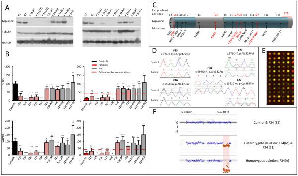 Diminished levels of Gigaxonin corroborate with identification of mutations in the GAN locus. A Immunodetection of Gigaxonin in new patient's lymphoblast cell lines. (S1) and (S2) are unaffected sisters of patient F24. B Quantification of Gigaxonin in patients and their relatives, using Tubulin or GAPDH as internal controls. Individual level of Gigaxonin is compared with the range of wild type Gigaxonin (left panel) and mutated Gigaxonin in known GAN patients (as presented in Figure 1 , right panel). The red lines correspond to the maximum individual mean value from patients. Please note that Gigaxonin abundance was so low (undetectable) for F24 and F30 that it was detected as significantly different from mutated Gigaxonin. N = 3-5 experiments. (T-test, *, p