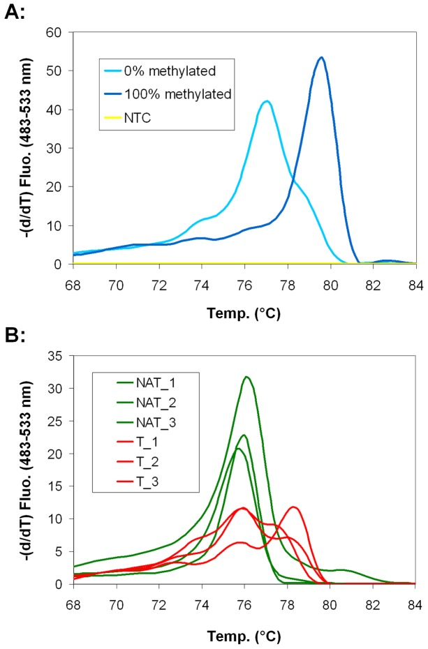 Promoter hypermethylation of SFRP1 gene in BS-PCR HRM. SFRP1 is hypermethylated in α-SMA positive myofibroblasts in CRC. A: Melting peaks of SFRP1 BS-PCR products. Melting temperature (Tm) of 0% methylated standard sample was 77.1°C, while Tm of 100% methylated standard was 79.6°C. B: There was only one unmethylated melting peak detectable for NAT samples (green curves). In CRC samples (red curves) an additional melting peak belonging to hypermethylated products appeared, suggesting that α-SMA positive myofibroblasts are heterogenous concerning SFRP1 promoter methylation.