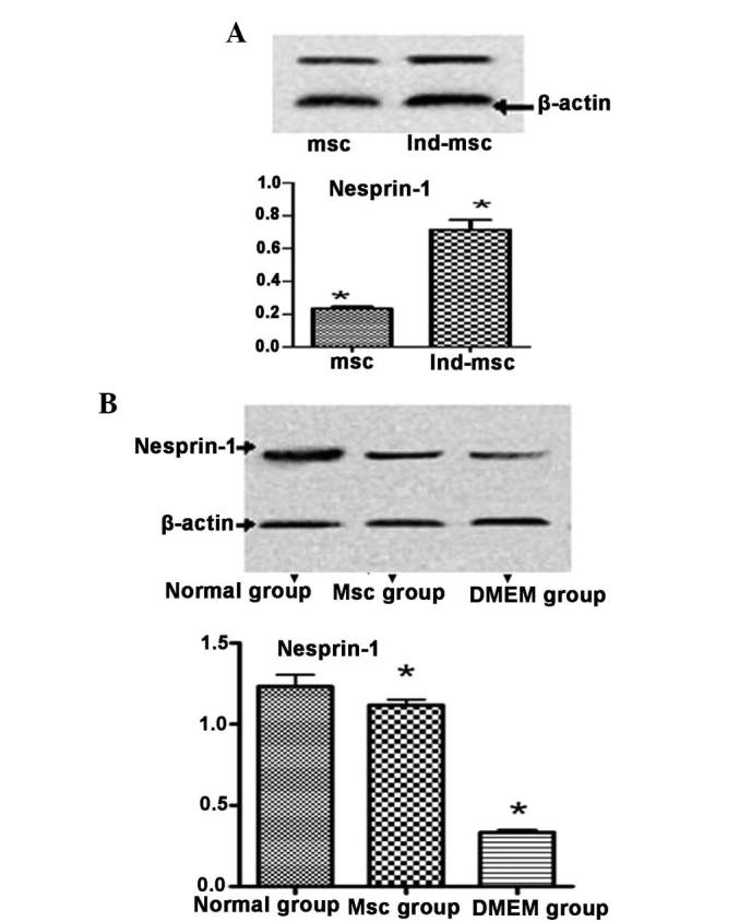 Expression levels of nesprin-1 protein detected by western blot analysis. (A) Expression levels of nesprin-1 protein in the 5-azacytidine-treated MSCs are higher than those of the untreated MSCs. (B) Nesprin-1 protein expression levels were higher in the MSC group than those in the DMEM control group, but lower than those in the normal group. MSCs, mesenchymal stem cells; DMEM, Dulbecco's modified Eagle's medium; ind-msc, 5-azacytidine-treated MSCs; Ind-msc, 5-azacytidine-treated MSCs.