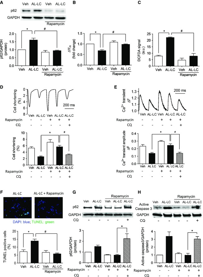 Restoration of autophagic flux with rapamycin attenuates AL-LC-induced cellular dysfunction and cell death in vitro Immunoblot analysis of p62 on cardiomyocytes following 24-h exposure to vehicle, Con-LC or AL-LC in the absence or presence of 10 nM rapamycin. Quantitative results summarized below show decreased p62 expression following rapamycin treatment. N = 3. * P = 0.003, # P = 0.006. Mitochondrial function is rescued by rapamycin treatment, shown by quantitative analysis of mitochondrial membrane potential using TMRE dye in cardiomyocytes following exposure to vehicle, Con-LC or AL-LC for 24 h in the presence or absence of rapamycin. N = 3. * P = 0.046, # P = 0.005 between indicated groups. ROS levels are reduced by treatment with rapamycin, shown using DCFDA in cardiomyocytes exposed to vehicle, Con-LC or AL-LC. N = 3. * P = 2.3 × 10 −4 , # P = 0.002 between indicated groups. Contractile function was measured in cardiomyocytes exposed to AL-LC for 24 h in the absence or presence of rapamycin with or without chloroquine (2.5 μM). Quantitative analysis was performed by calculating percent cell shortening. N = 3. * P = 3.3 × 10 −4 , # P = 0.007. Calcium transient amplitude, measured in isolated cardiomyocytes, was quantified following exposure to vehicle or AL-LC in the presence or absence of rapamycin with or without chloroquine. Representative tracings are shown, and quantitative analysis in the graph shows a rescue of AL-LC-induced decrease in calcium transient amplitude following rapamycin treatment. N = 3, * P = 0.002, # P = 0.006. Rapamycin treatment reduces apoptosis in cardiomyocytes exposed to AL-LC. TUNEL staining was performed to quantify cell death in cardiomyocytes following exposure to vehicle, Con-LC or AL-LC with or without rapamycin treatment. Cell death was measured as percent TUNEL-positive nuclei relative to total cell number. N = 3. * P = 0.015, # P = 0.035 between indicated groups. Verification that rapamycin rescue was autophagy dependent w