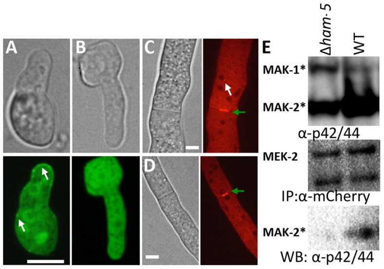 HAM-5 is required to localize MAK-2 and MEK-2 to puncta. (A) MAK-2-GFP in isolated WT germlings localizes to the nucleus, cytoplasm and to puncta (white arrows). (B) In the Δ ham-5 mutant, MAK-2-GFP localization is cytoplasmic and nuclear; no puncta are observed. Scale bar = 10 µM. (C) In WT hyphae, MEK-2-mCherry localizes to the septum (green arrow) and also to cytoplasmic puncta (white arrow). Scale bar = 10 µM. (D) In Δ ham-5 hyphae, septum localization of MEK-2-mCherry is observed (green arrow), but puncta are not. Scale bar = 10 µM. (E) Co-immunoprecipitation experiments showing an interaction between MEK-2-mCherry and phosphorylated MAK-2 in WT ( mek-2-mCherry ) germlings, but a significant reduction in interaction between MAK-2 and MEK-2-mCherry in a Δ ham-5 ( mek-2-mCherry ) strain. Top panel is a Western blot of protein samples probed with anti-p42/44 antibodies (MAK-2, 40.8 kD, MAK-1, 46.7 kD; Figure S4E ). Middle panel is anti-mCherry immunoprecipitated proteins probed with anti-mCherry antibodies (MEK-2-mCherry, 82.9 kD; Figure S4C , E). Bottom panel is anti-mCherry (MEK-2-mCherry) immunoprecipitated proteins probed via Western blot with anti-p42/44 antibodies that recognize phosphorylated MAK-2.