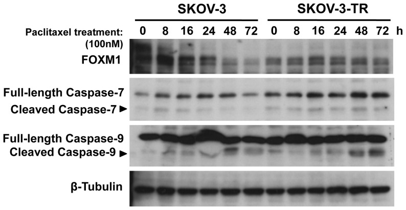 Paclitaxel treatment down-regulates FOXM1 expression in SKOV-3 but not in SKOV3-TR cells. The paclitaxel sensitive SKOV-3 and resistant SKOV3-TR ovarian cancer cells were treated with 100 nM paclitaxel and harvested at times indicated for Western blot analysis. Paclitaxel treatment down-regulated FOXM1 expression at time points 48 h and 72 h in SKOV-3 but not in SKOV3-TR as shown by immunoblotting. There were also no marked changes in the cleaved Caspase-9 and Caspase-7 expression.
