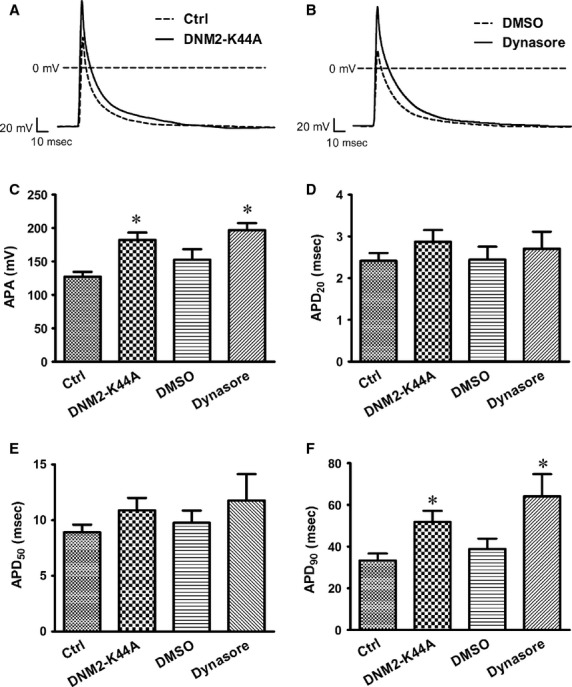 DNM2 deficiency changes AP in ventricular myocytes. ( A ) Representative AP recordings from Ctrl (control vector) and DNM2-K44A overexpression cells. ( B ) Representative AP recordings from DMSO-and dynasore-treated myocytes. ( C – F ) Statistic analysis for action potential amplitude (APA) action potential duration at 20% (APD 20 ), APD 50 , APD 90 . * P