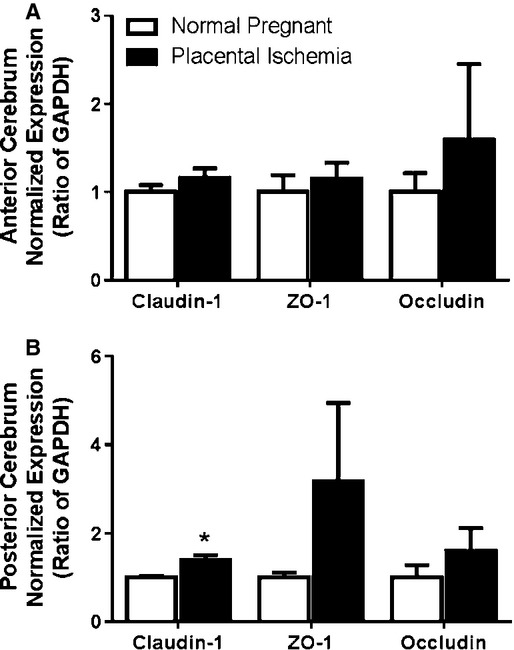 Expression of tight junction proteins in the (A) anterior cerebrum and (B) posterior cerebrum of placental ischemic rats. Quantitative analysis of Western blot for Claudin‐1, Occludin, and ZO‐1 normalized to beta‐actin or GAPDH. Blots are representative samples for respective groups – order of blots match the order of the bars. Bars represent Mean ± SEM. * P