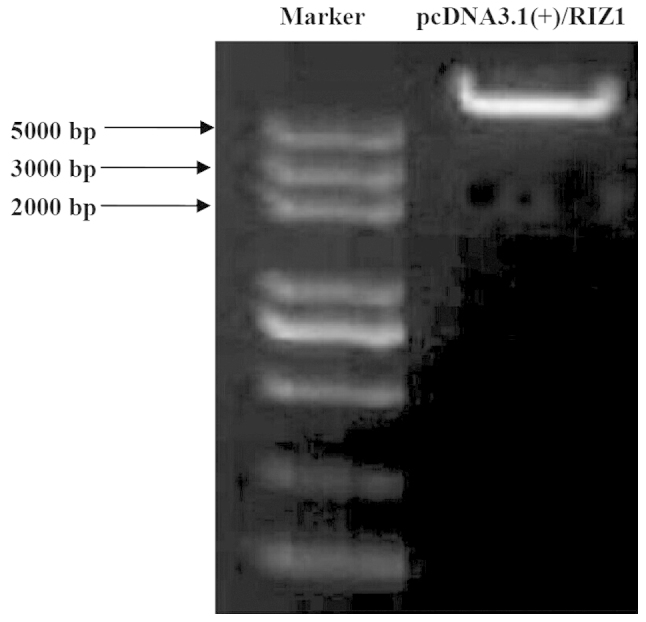 A603, A1200, B, C and D segments were ligated into pcDNA3.1(+) and verified by restriction enzyme digestion. The appearance of the 10,585 bp pcDNA3.1(+)/RIZ1 band was consistent with the expected results. RIZ1, retinoblastoma protein-interacting zinc finger protein 1.