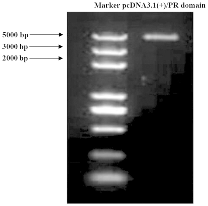 Agarose gel electrophoresis of pcDNA3.1(+)/PRDI-BF1-RIZ (PR) domain polymerase chain reaction product. The appearance of the 6031 bp band was consistent with the expected results.