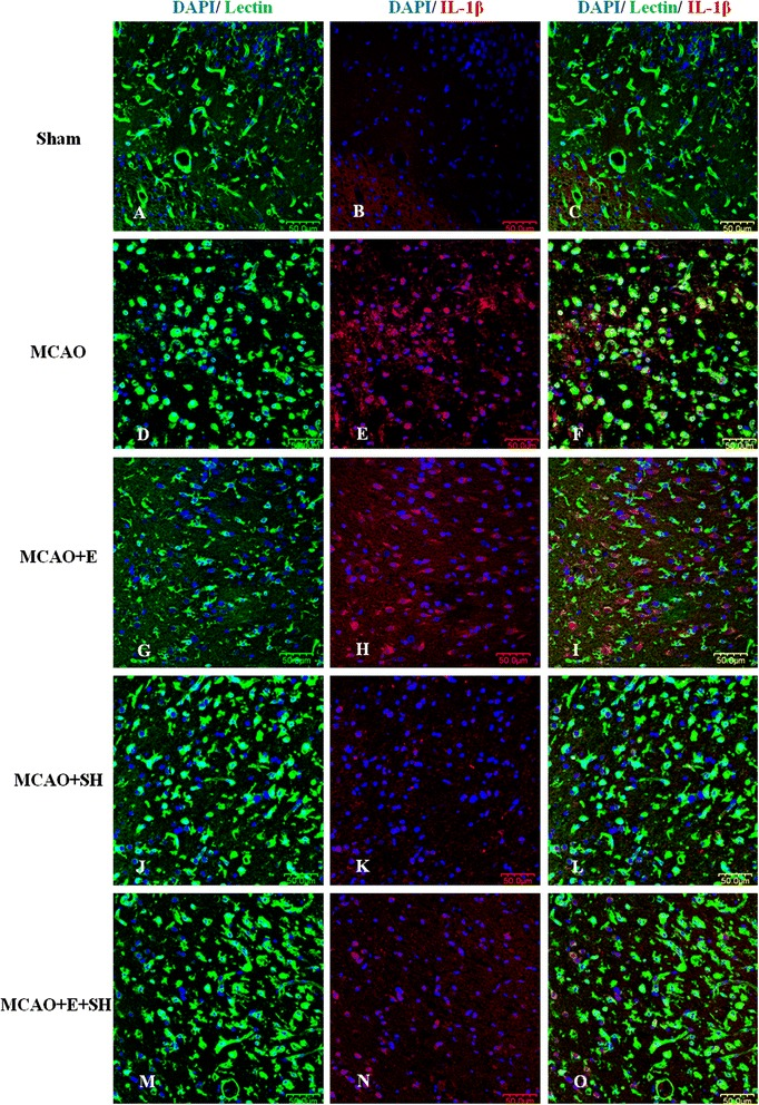 Treatment of MCAO rats with drugs E, SH and E + SH resulted in the reduction of IL-1β expression in activated microglia. Confocal images showing the expression of IL-1β (red) in lectin + microglia (green) in the penumbral zones of MCAO rat brain (D-F) and following treatment with E (G-I) , SH (J-L) and E + SH (M-O) (n = 5 for each group). A noticeable increase in IL-1β expression (E) can be observed in the activated microglia (D) in MCAO rat brain. IL-1β expression (H, K) , however, was depressed in activated microglia (G, J) 3 days following treatment of MCAO rats with drugs E and SH. Also, IL-1β expression (N) was almost totally abolished in activated microglia (M) when MCAO rats were treated with a combination of the two drugs. DAPI – blue. Scale bars in A-O : 50 μm