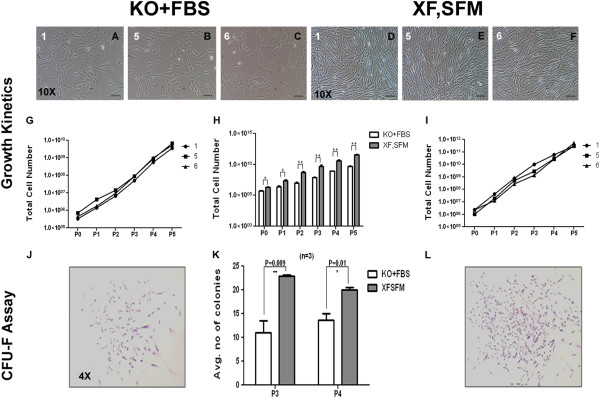 Growth kinetics and CFU-F efficacy. A-F) Representative morphology pictures of WJ derived MSCs cultured in DMEM KO + 10% FBS and MesenCult XF,SF media; G,H,I) Total cell yield obtained at passage 5 using XF,SF medium, compared against DMEM KO + 10% FBS; K) Average number of colonies generated per 100 cells at passage 3 and passage 4, by cells cultured in XF,SF media and DMEM KO + 10% FBS; J,L) Individual colonies captured at 4X magnification, for XF,SFM cultures and DMEM KO + 10% FBS cultures, respectively. FBS, fetal bovine serum; GFU-F, colony-forming unit-fibroblast; MSCs, mesenchymal stem cells; WJ, Wharton's jelly.