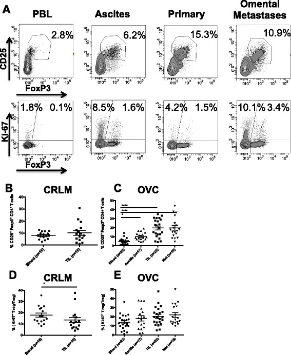 CD4 + T cell analysis. A . CD3 + CD4 + T cells collected from PBL, ascites, primary tumor and omental metastases were analyzed for CD25 and FoxP3, upper panels and Ki-67 and Foxp3, lower panels. Percentage of CD25 + FoxP3 + , Treg in PBL and TIL of CRC patients (n = 16) B , and in OVC patients (n = 22) C . Percentage of proliferating Treg in CRC samples (D) and in OVC samples (E) .
