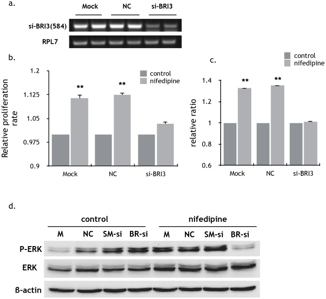 Inhibition of proliferation, migration and P-Erk of MDA-MB-231 by silencing BRI3 gene expression. a) Effective silencing of BRI3 mRNA in MDA-MB-231 cells after siRNA treatment. BRI3-homo-584 siRNA markedly inhibited BRI3 mRNA expression at 100 nM after transfection for 24h. b) siRNA directed against BRI3 suppressed the facilitation of nifedipine in the proliferation of MDA-MB-231 cells. Data were presented as the mean±SEM of three independent experiments. Specific comparison between nifedipine groups and control groups, P
