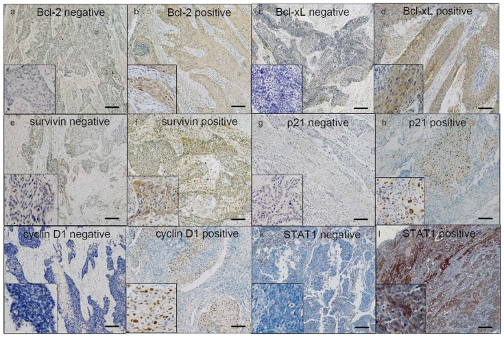 Immunohistochemistry for Bcl-2, Bcl-xL, survivin, p21 and cyclin D1. By immunohistochemistry applied to formalin-fixed paraffin-embedded tissues, all proteins were detectable in most ESCC tumors. The staining was predominantly cytoplasmic for Bcl-2, Bcl-xL and surviving and nuclear for p21 and cyclin D1. Based on the staining intensity, tumors in our cohort were categorized into positive or negative (a) Cytoplasmic negative expression of Bcl-2 (b) Cytoplasmic positive expression of Bcl-2 (c) Cytoplasmic negative expression of Bcl-xL (d) Cytoplasmic positive expression of Bcl-xL (e) Cytoplasmic negative expression of survivin (f) Cytoplasmic positive expression of survivin (g) Nuclear negative staining of p21(h) Nuclear positive staining of p21 (i) Nuclear negative staining of cyclin D1 (j) Nuclear positive staining of cyclin D1(k) Cytoplasmic negative expression of STAT1(l) Cytoplasmic positive expression of STAT1 (IHC stain, scale bar, 20 µm).