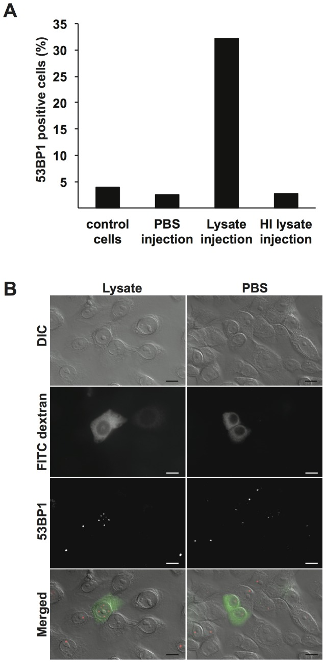 Microinjection of bacterial lysates in the cytoplasm of VK2/E6E7 cells causes DSBs. A. Interphase VK2/E6E7 cells were subjected to cytoplasmic microinjection of bacterial MS11 P+ lysate, MS11 P+ HI lysate, or PBS. Cells were incubated for 20–24 h and then stained for DSBs with 53BP1 antibodies. The graph shows the average number of 53BP1 positive cells counted in two independent experiments under each condition. Control cells are non-injected cells. B. Images showing DIC and fluorescent images of representative cells microinjected with MS11 P+ lysate (left) or PBS (right). FITC-dextran (green) was co-injected into the cytoplasm to identify microinjected cells. Scale bar represents 10 µm.