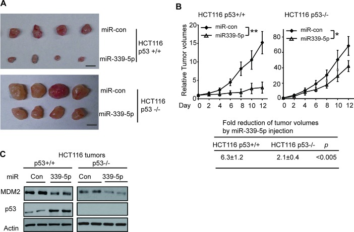 MiR-339-5p inhibits the growth of HCT116 xenograft tumors in a largely p53-dependent manner (A, B) MiR-339-5p inhibited the growth of HCT116 xenograft tumors in nude mice in a largely p53-dependent manner. Xenograft tumors were established by s.c. injection of HCT116 p53+/+ and HCT116 p53−/− cells into nude mice. When tumor volumes reached ~60mm 3 , tumors were injected with miR-339-5p mimic or miR-con once every two days for 6 times. (A) Representative tumors were photographed at 12 days after the first treatment with miR-339-5p mimic or miR-con. Scale bar: 10 mm. (B) Upper panels: The growth curves of HCT116 p53+/+ and p53−/− tumors after miR-339-5p injection. The relative volumes of the tumors before treatment at day 0 were designated as 1. Lower panel: The fold reduction of tumor volumes by miR-339-5p injection in both HCT116 p53+/+ and p53−/− tumors. Data are presented as mean ± SD (n=12 for each group). *: p