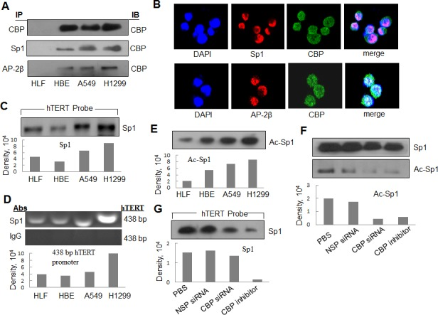 The interaction of CBP with Sp1 and AP-2 and the acetylationt of Sp1 by CBP in lung cancer cells (A) The nuclear extracts of human lung normal and cancer cells were prepared for immunoprecipitation using an antibody against Sp1 or AP-2β and then evaluated by immunoblot using antibody against CBP. (B) Human lung cancer H1299 cells grown on chamber slides were cultivated for 24 h, and the subcellular localization and the colocalization of CBP with Sp1 or AP-2β were examined by confocal microscopy analysis with a confocal microscope. More than 100 cells were inspected per experiment, and cells with typical morphology were presented. (C) Streptavidin-agarose bead pulldown assay with hTERT promoter (-378 to +60) as probes was done. Sp1 was tested in the pulled down proteins by immunoblot using antibody against Sp1. (D) Chromatin immunoprecipitation assays were done using antibody against Sp1. PCR products of hTERT promoter (-378 to +60) were separated on 1% agarose gels. The last lane represents the IgG control. (E) Immunoprecipitation was performed using antibody against Sp1. The acetylated Sp1 was determined by immunoblot using the antibody against acetylation. (F) Immunoprecipitation was performed in human lung cancer cells (H1299) treated by non-specific siRNA or CBP specific siRNA or inhibitor using antibody against Sp1. The acetylated Sp1 was tested by immunoblot using antibody against acetylation. (G) Streptavidin-agarose bead pulldown assay with hTERT promoter (-378 to +60) as probes was done in lung cancer cells (H1299) treated by non-specific siRNA or CBP specific siRNA or CBP-specific inhibitor. The level of Sp1 in the pulled down proteins was determined by immunoblot. Densitometric analysis was used to analyze quantitatively the binding activity and acetylation level of Sp1 proteins.