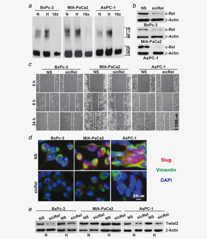 NF-κB is involved in hypoxia-induced progression. ( a ) Cells were incubated under normoxic (N) or hypoxic (H) conditions, followed by isolation of nuclear protein extracts 24 hr later. DNA binding was analyzed by EMSA using a biotin-labeled oligonucleotide probe for the NF-κB promoter consensus sequence. Specific (NF-κB) and unspecific shifts (UNSP) are marked. Competition with a tenfold excess of unlabeled oligonucleotide (10×) served as a control for specificity of binding. ( b ) Cells were transfected with siRNA oligonucleotides encoding a nonsense (NS) sequence or a specific sequence for inhibition of c-Rel (sicRel). Three days later, proteins were prepared, and the expression of c-Rel was evaluated by Western blot analysis. β-Actin served as a control for equal loading. The bar indicates 50 µm. ( c ) Three days after transfection with nonsense or c-Rel siRNA, the confluent cell layers were scratched, and then, they were cultured under hypoxic conditions. Closure of the wounded region was monitored 6 and 24 hr after scratching by microscopy and documented by photographs. The bar indicates 100 µm. ( d ) Likewise, the expression of EMT-related proteins Slug and Vimentin was detected by double immunofluorescence staining of cells exposed to hypoxia for 48 hr. DAPI counterstaining was used for detection of nuclei. Mouse anti-CD44 <t>mAb/Alexa</t> <t>Fluor</t> 594 IgG (red) and rabbit polyclonal anti-CA IX/Alexa Fluor 488 IgG (green) were used as secondary antibodies. Tissue sections were analyzed under ×400 magnification using a Leica DMRB fluorescence microscope. The bar indicates 25 µm. ( e ) Western blot analysis of Twist2 expression was performed using protein extracts derived from siRNA-transfected cells cultured under normoxia or hypoxia for 3 days.