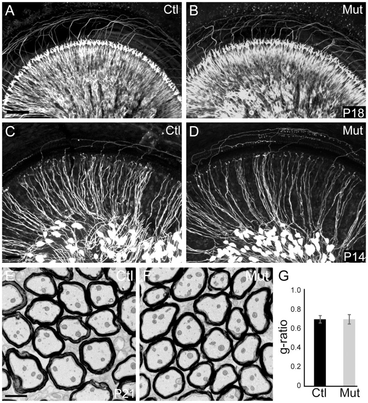 Peripheral SGN connectivity is normal in Npr2 mutant mice. ( A,B ) Cochlear innervation was visualized by neurofilament immunostaining of P18 whole cochleae. Visual inspection revealed no obvious difference in the peripheral pattern of connections between wild-type control (Ctl, n = 2) (A) and Npr2 mutant (Mut, n = 2) (B) animals. ( C,D ) SGN projections in the P14 cochlea were labeled by crossing Neurog1-CreER T2 to the AI14:tdTomato reporter strain, which enables visualization of a subset of SGNs along the length of the cochlea. Individual SGNs of control animals (Ctl, n = 3 heterozygotes) (C) show neatly organized projections within the cochlea. Individual SGN processes of Npr2 mutant (Mut, n = 5) cochleae (D) showed no qualitative differences compared to controls. Note that the degree of labeling can vary slightly independent of genotype, due to fluctuations in Cre activity. ( E ) Electron micrograph of a transverse section of myelinated SGN axons in the eighth nerve in a control P21 animal. ( F ) Similar electron micrograph of the eighth nerve of an Npr2 mutant at P21 shows normal axonal diameters and normal myelination. ( G ) The g-ratio of Npr2 mutants did not differ from controls ( P = 0.87, Student's t-test) and was near optimal. Scale bars in A, 50 µm; C, 2 µm.