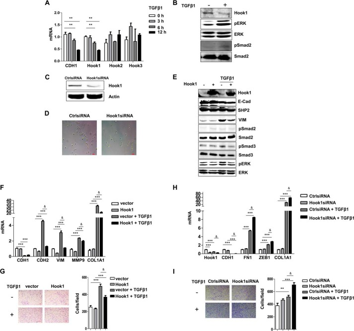 Hook1 negatively regulated EMT. A , quantification of the mRNA levels of CDH1 , Hook1, Hook2 , and Hook3 in A549 cells with TGFβ1 treatment (5 ng/ml) for 0, 3, 6, and 12 h (**, p
