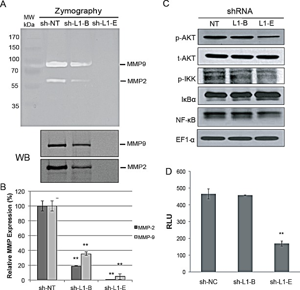 Effect of L1 cell adhesion molecule (L1CAM) shRNA on matrix metalloproteinase and nuclear factor NF-κB activation in prostate cancer PC3 cells (A) Gelatin zymographic (top) and Western blot (WB, bottom) analyses of MMP-2 and MMP-9 expression in conditioned medium (CM) from the shRNA-expressing PC3 cell lines. The positions of active MMP-2 and MMP-9 are indicated. (B) Quantitative real time RT-PCR analysis of transcriptional levels of MMP-2 and MMP-9. The relative MMP expression was normalized to the HSPCB housekeeping gene and plotted relative to the sh-NT control. Data are presented as the mean±SD of three independent determinations. ** p