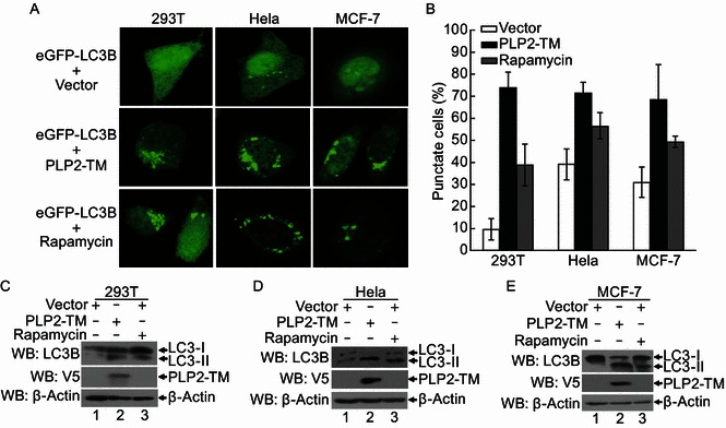 Autophagosome induced by CoV NL63 PLP2-TM in various cell lines . (A) PLP2-TM-V5 and pcDNA3.1-eGFP-LC3B were co-transfected respectively into HEK2923T, HeLa and MCF-7 cells. The cells were fixed at 48 h post-transfection and were analyzed for eGFP-LC3B positive autophagosome accumulation (green) using a confocal microscope as described in Fig. 1 B. (B) Quantification of cells displaying eGFP-LC3B puncta from one representative experiment that shown in Fig. 2A as described in Fig. 1 C. (C–E) HEK293T, HeLa and MCF-7 cells were transfectd with PLP2-TM-V5 or empty vector as a negative control for 48 h. These cells were also treated by 400 nmol/L Rapamycin to serve as a positive control for induction of autophagy. The cells were then lysed for Western blotting analysis using a rabbit anti-LC3 antibody to detect the endogenous LC3 expression (top panel in each Fig. 2C–E). The whole cell lysate (WCL) was blotted using anti-V5 antibodies to evaluate expression of PLP2-TM (middle panel in each Fig. 2C–E), and β-Actin was detected from whole cell lysate (WCL) as a loading control (bottom panel in each Fig. 2C to 2E)