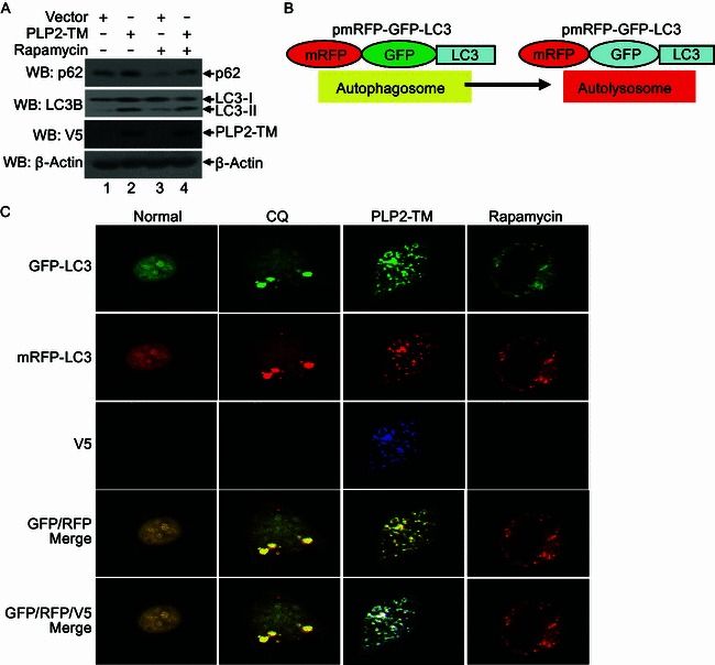 PLP2-TM activates autophagosome formation but prevents its fusion with lysosomes . (A) HEK293T cells were transfected with pcDNA3.1 or PLP2-TM. As the positive control for induction of autophagy, HEK293T cells were treated with complete medium supplemented with 400 nmol/L Rapamycin for 6 h. At 48 h post-transfection, the levels of endogenous autophagic substrate p62, LC3 protein and PLP2-TM were determined using Western blot analysis. Beta-actin expression was examined as a protein loading control. (B) Diagram of mRFP-GFP-LC3 structure and the principle for probing autophagy flux with mRFP-GFP-LC3 construct. The GFP signal was easily quenched in autolysosome as the acidic pH lysosomal background because of lysosomal hydrolysis, while mRFP fluorescence existed in the acidic pH background. The merged yellow signal GFP + mRFP + was visualized using a confocal microscope in the autophagosomes and GFP - mRFP + signal was visualized using a confocal microscope in the autolysosomes as described previously (Tang et al., 2013 ). (C) PLP2-TM activates autophagosome formation but blocks its fusion with lysosomes. HEK293T cells were co-transfected with mRFP-GFP-LC3 and PLP2-TM. As the positive control for induction of autophagy, HEK293T cells were transfected with mRFP-GFP-LC3 and then treated with complete medium supplemented with 400 nmol/L Rapamycin for 6 h. For the inhibition of autolysosome maturation, HEK293T cells were transfected with the plasmids of mRFP-GFP-LC3 and then treated with complete medium supplemented with 50 µmol/L CQ for 6 h. At 48 h post-transfection, the cells were fixed and assessed for GFP and mRFP fluorescence. Based on differential pH sensitivity of mRFP and GFP, the mRFP-GFP-LC3 probe differentiates between early, nonacidified autophagosomes (red + green + , yellow in merged images) from acidified, degradative autolysosomes (red + green − , red in merged images)
