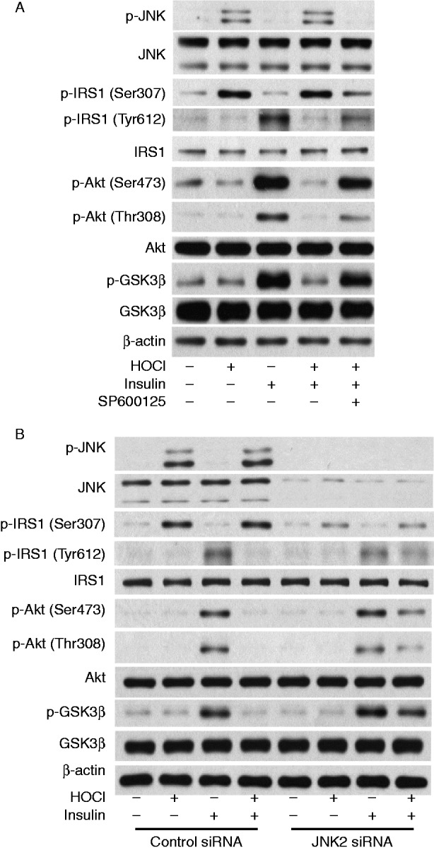 Inhibition of JNK prevents HOCl-induced phosphorylation of IRS1 at Ser307 and insulin resistance. (A) 3T3-L1 adipocytes were pretreated with 30 μmol/l SP600125 for 90 min and incubated with 200 μmol/l HOCl for 1 h and then stimulated with 100 nmol/l insulin or left unstimulated for 15 min. (B) 3T3-L1 adipocytes were transfected with JNK2 siRNA or control siRNA for 48 h and treated with 200 μmol/l HOCl for 1 h, and then stimulated with 100 nmol/l insulin or left unstimulated for 15 min. Western analysis of protein expression and phosphorylation of JNK, IRS1, Akt, and GSK3β was performed. Blots are representative of the results from five independent experiments.